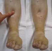 Edema by Dr. James Heilman (CC 3.0)