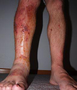 Urushiol allergic reaction by Eterve (CC)